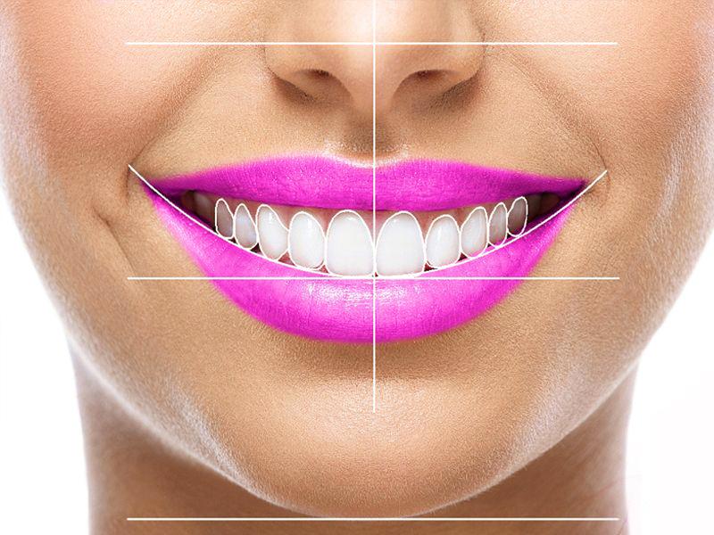 master-estetica-dental